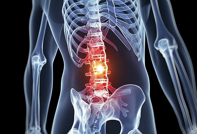 Поясничный остеохондроз лечение в Чебоксарах